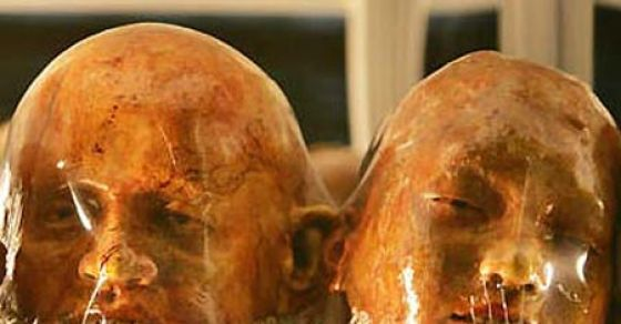 These Brutally, Gruesomely Dismembered Human Body Parts Will Haunt You in Dreams