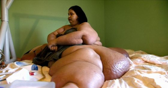 This Woman Weighed Over 1000 Pounds... You Won't BELIEVE What She Looks Like Now!