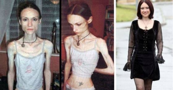 15 Inspiring Before And After Pictures Of People Who Beat Their Eating Disorders