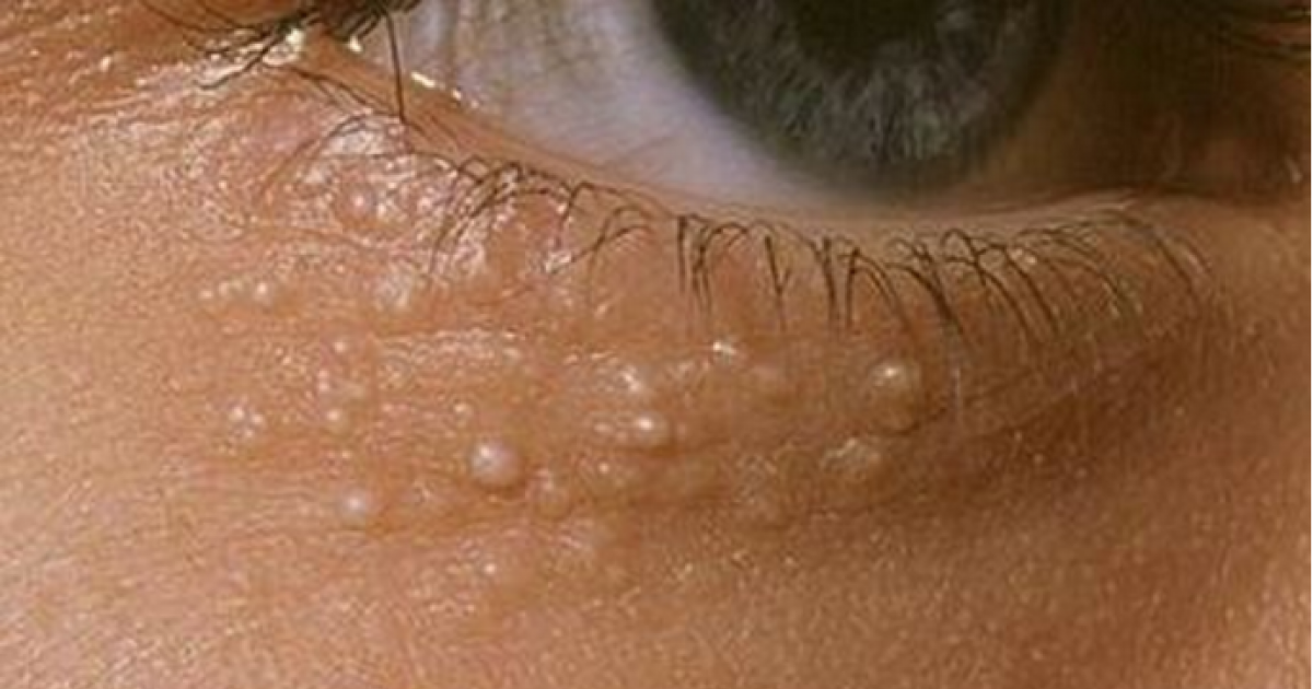 This Is What Those Weird Small White Dots On Your Face Mean. BEWARE!