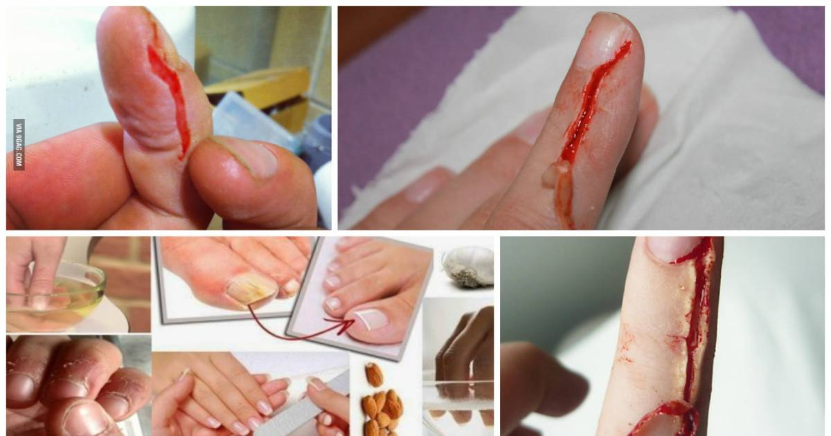 Hangnails Are Easy To Get Rid Of | TheDailyBuzz