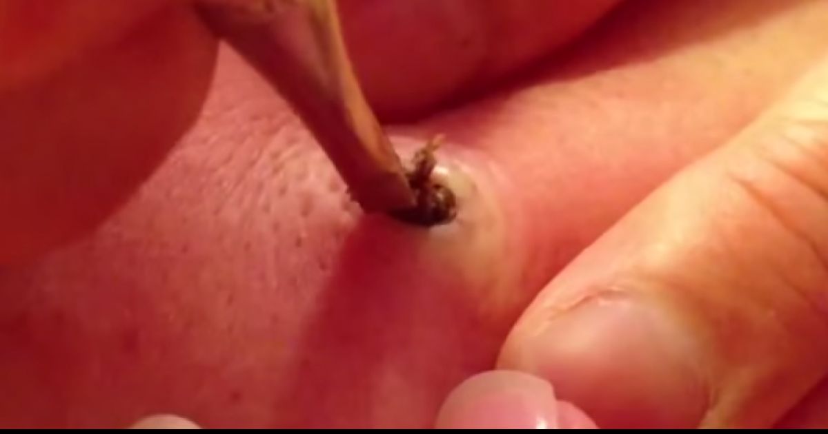 See What Happens When She Finally Pops This 20-Year-Old Pimple