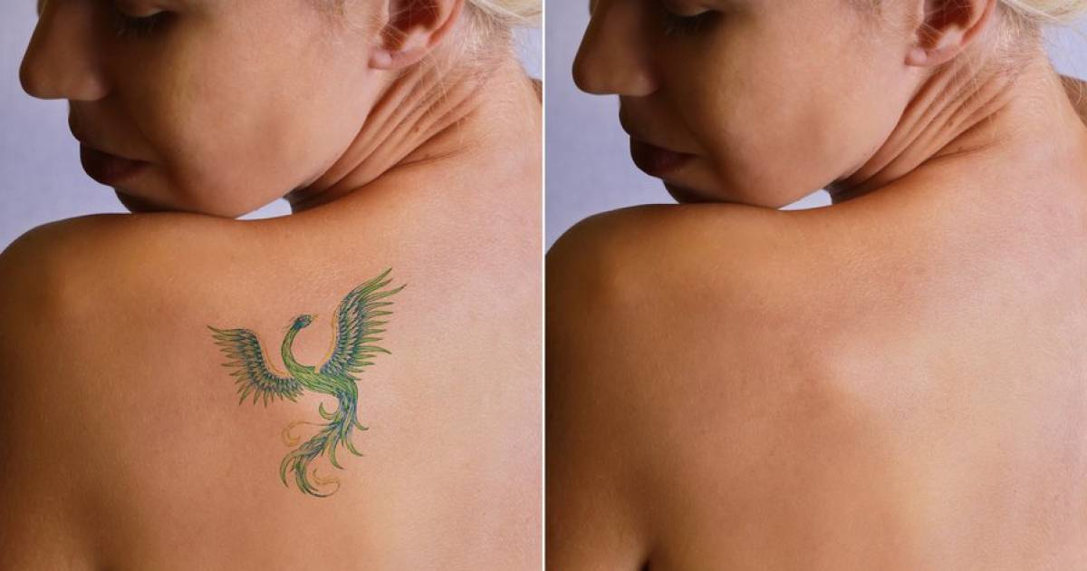 Ever Wondered What Happens To Tattoos When You Remove Them?