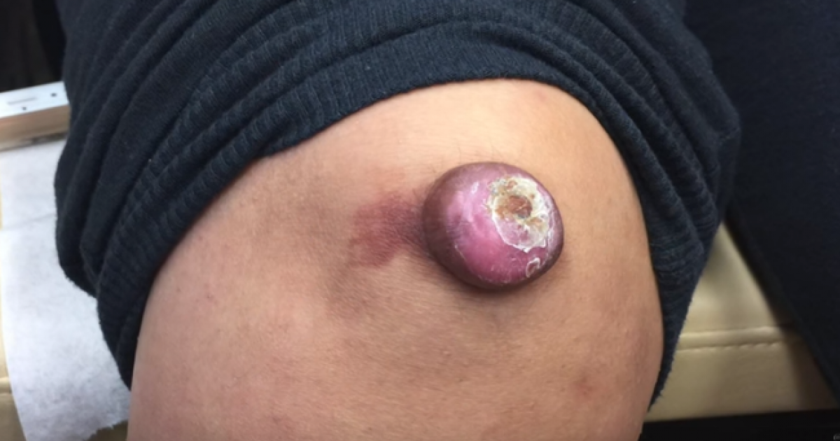 Dr. Pimple Popper Collected Her Best Removals Of 2016 Into The Greatest Video Of All Time