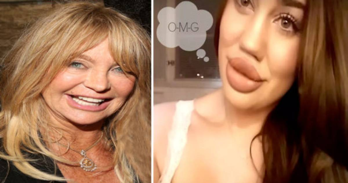 Terrifying Lip Filler Fails