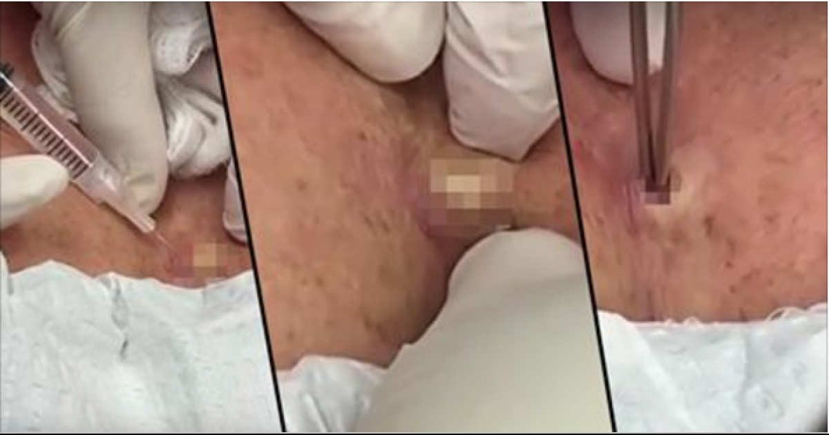 Dr Pimple Popper Strikes Again, Removes NOPE Cyst From Breast