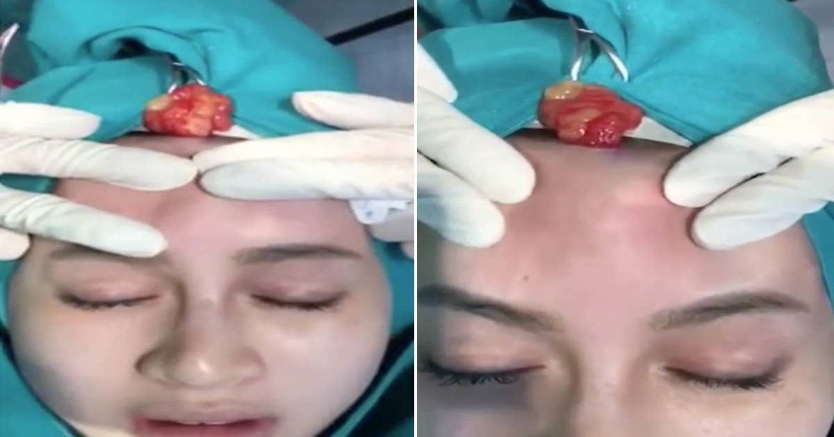 Gross Moment Woman Has Infected Dermal Filler Squeezed From Forehead