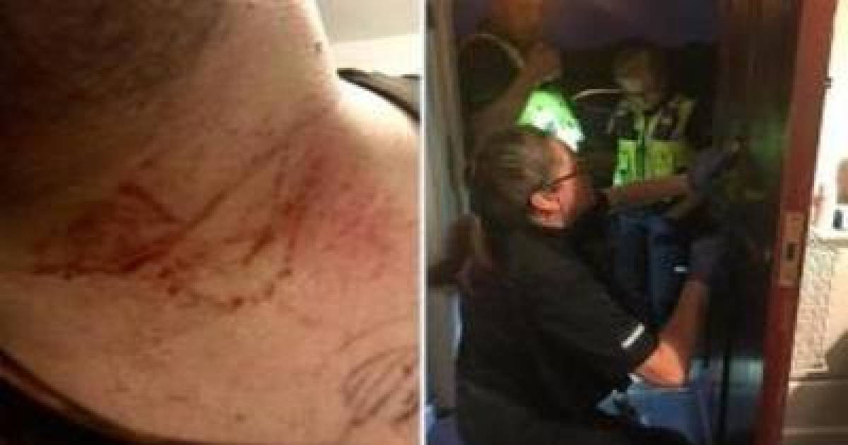 Man Nearly Killed By Thug After Being Tricked Into Opening The Front Door For A Crying Woman.