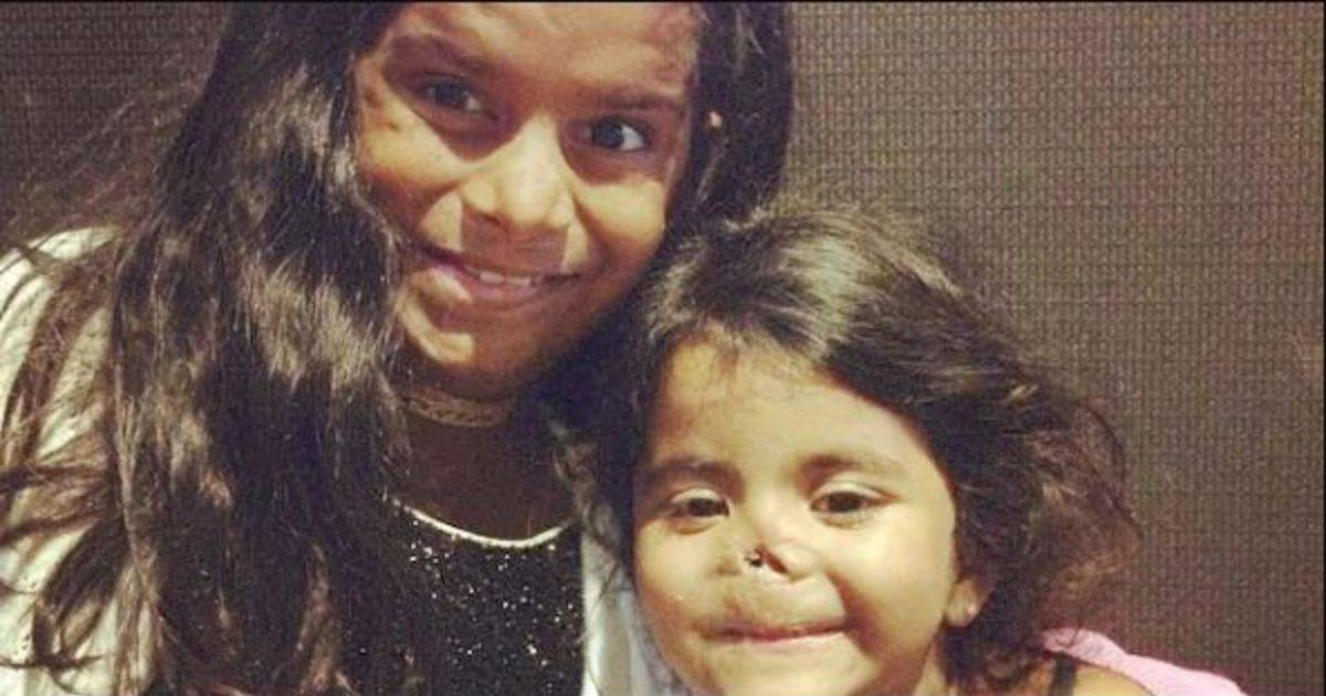 Two Young Girls With Horrible Facial Scars Are Adopted Then Brought To America To Be Transformed.