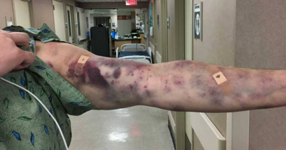 Mystery Bug Bite Baffles Doctors After Man Wakes Up With Terrifying Bruises
