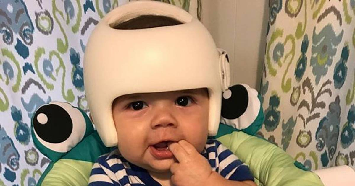 4-Year-Old Has To Wear A Helmet For His Medical Condition So The Whole Family Decides To Wear One In Support