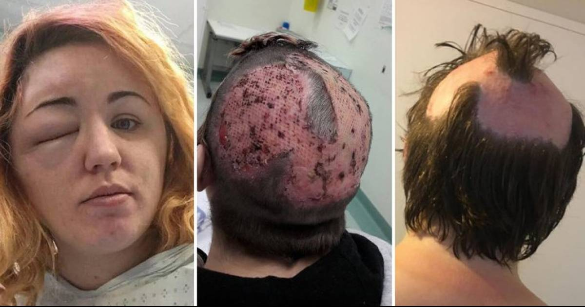 Horrifying Experience Shows The Dangers Of Bleaching Your Hair At Home