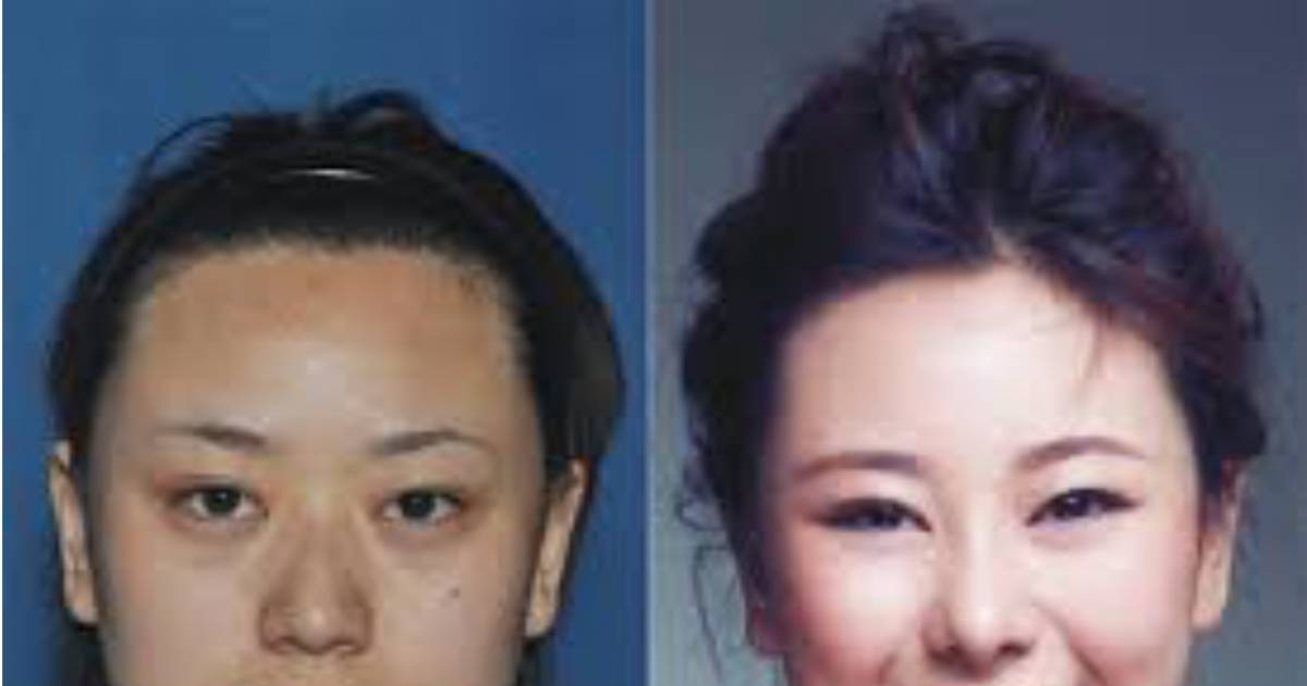 Woman Gets Plastic Surgery To Escape $3.7 Million Debt And The Story Only Gets Worse From There