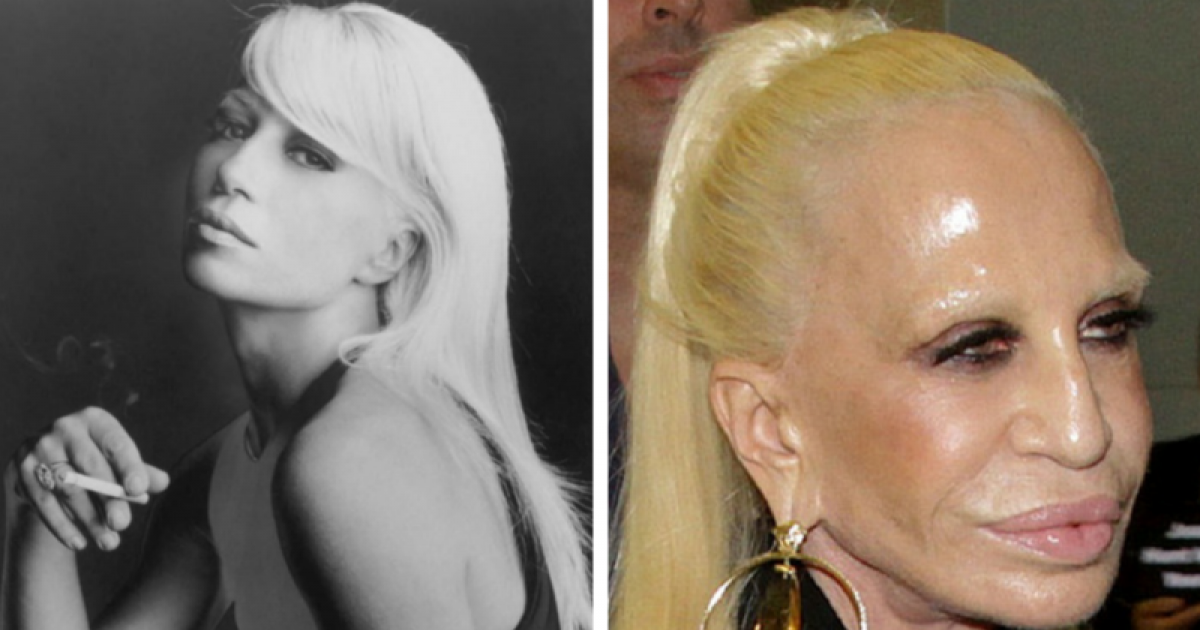 Celebrities Who Have Aged Terribly