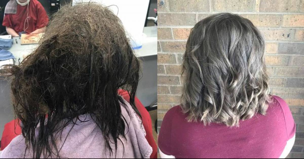 Before And After Pics Of Teen's Hair Show How Depression Impacts Everything