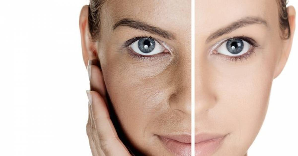 The Most Effective Home Remedies For Skin Pigmentation