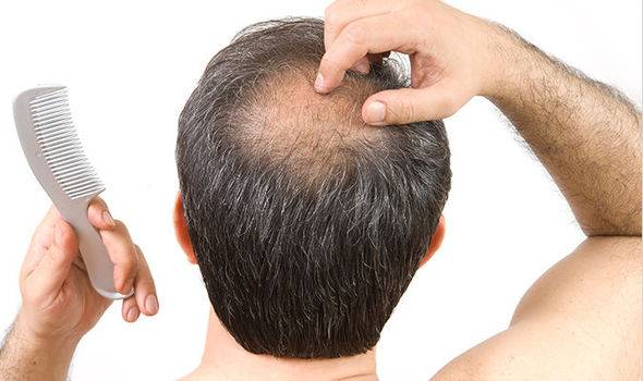Выпадают волосы питание
