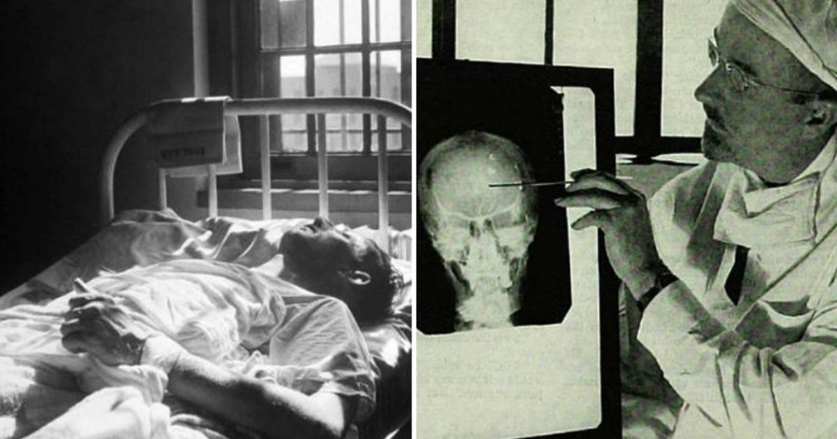 15 Of The Stupidest Treatments In History