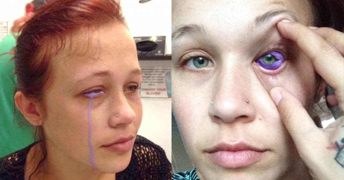 Model Warns Others On Facebook After Eye Tattoo Goes Seriously Wrong