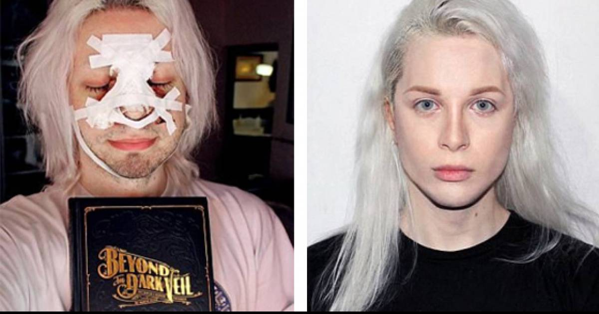 A Man From Argentina Has Spent More Than £25,000 On Plastic Surgery To Look Like Real-Life Elf.
