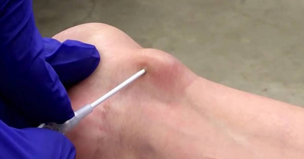 Stomach-Churning Video shows Woman Uses Screwdriver To Pop Wrist Cyst