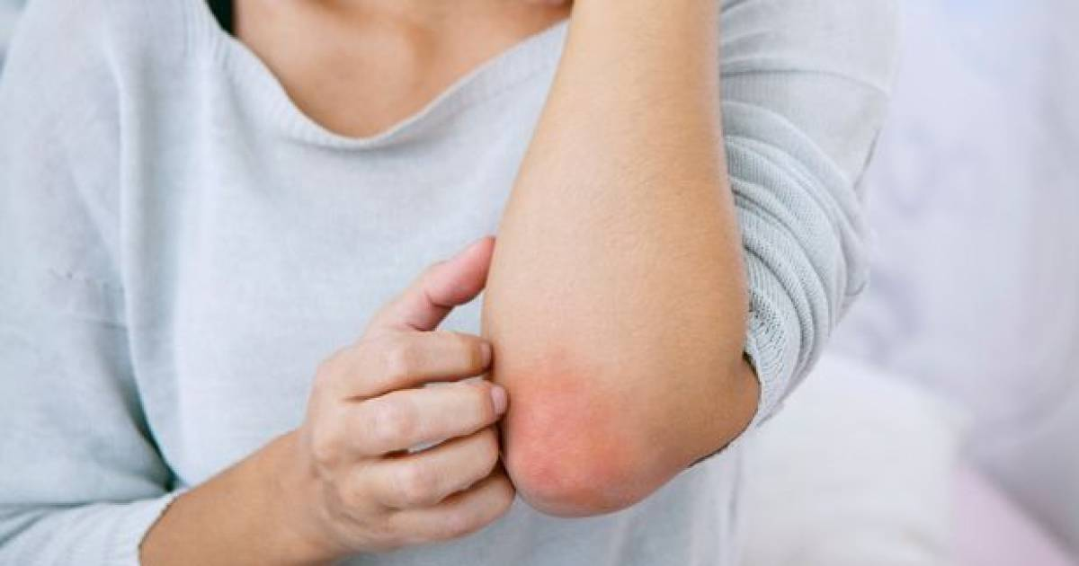 The Best Home Remedies For Handling Winter Itch