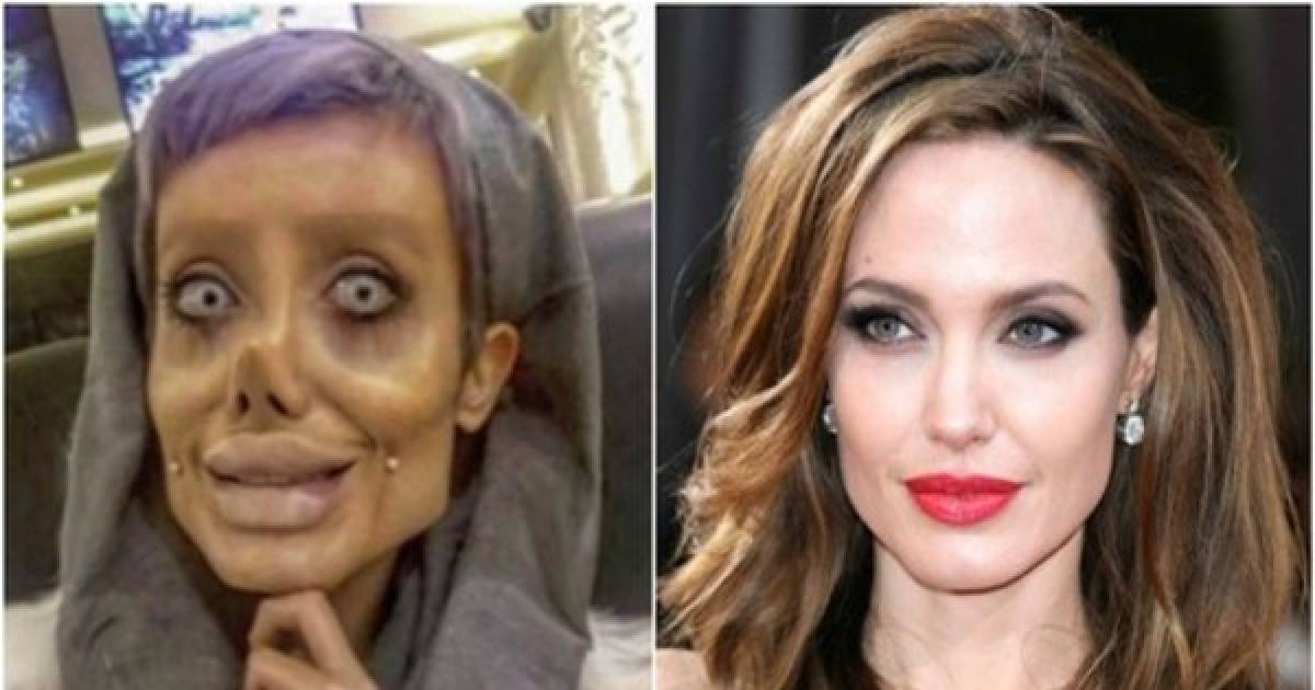 In A Horribly Failed Attempt To Look Like Angelina Jolie, This Iranian Teen Has Had 50 Cosmetic Surgeries!