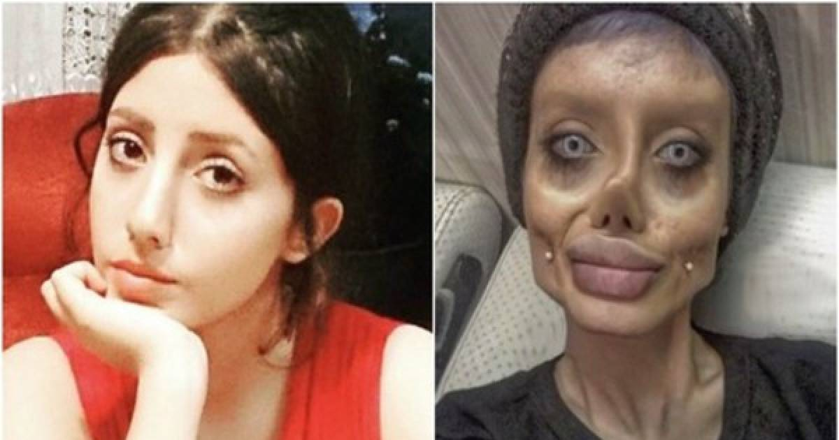 Doctors' Ethics Are Now Being Questioned After He Performed 50 Surgeries On An Iranian Teen So She Could Look Like Angelina Jolie