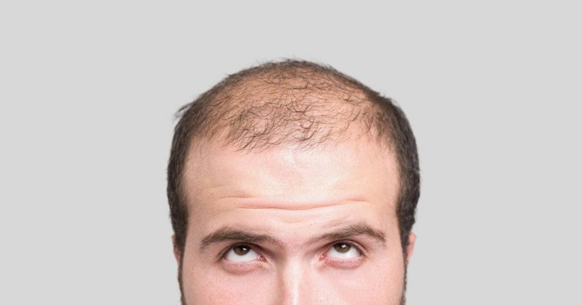 A Cure For Baldness? Scientists Claim To Have Found One.