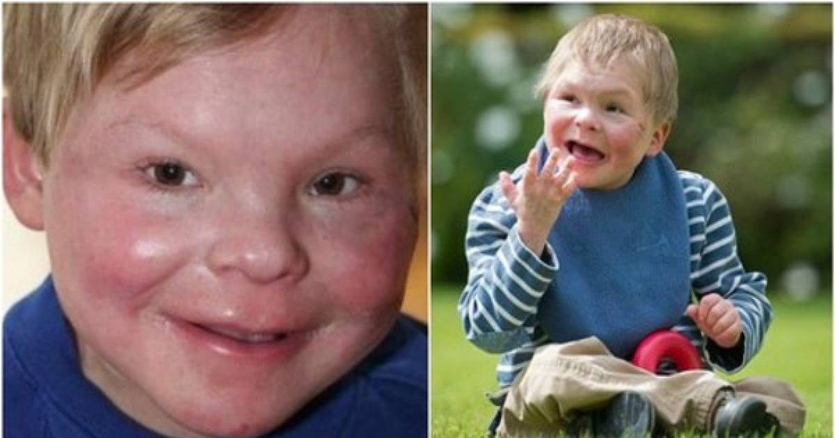 This 13 Year Old Is Trapped In A Toddler's Body Due To A Strange Condition