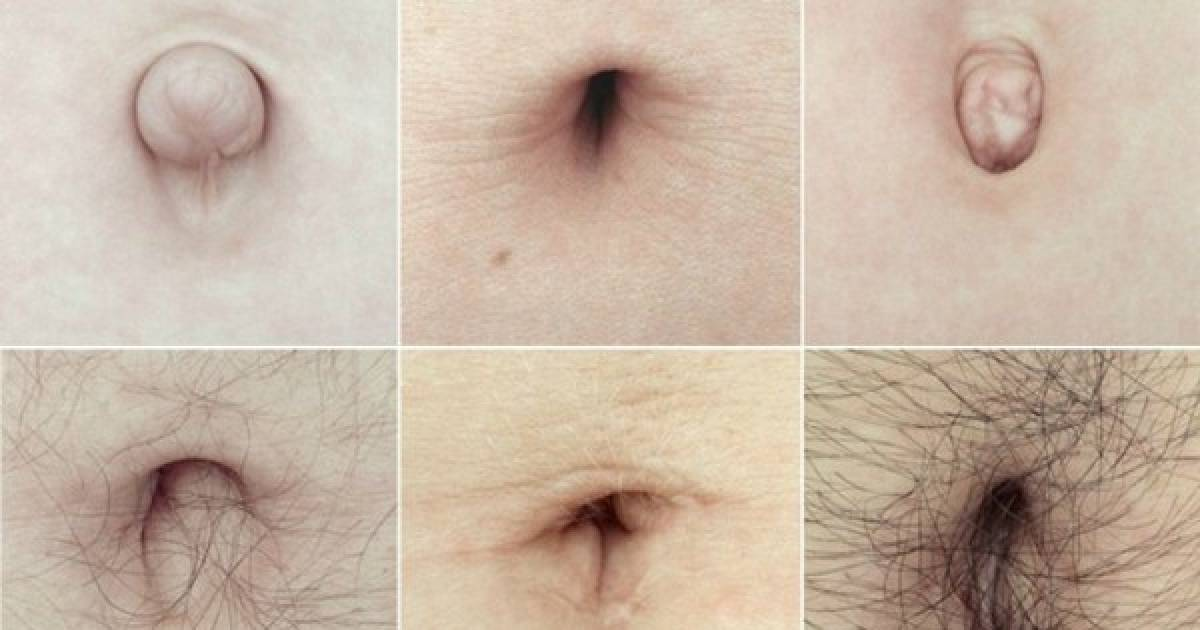 The Shape Of Your Belly Button Can Reveal A Lot About Your Personality