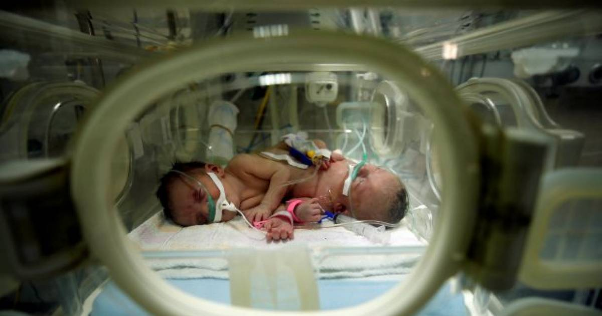Doctors Separate Parasitic Twin Sister From Baby Boy In Saudi-Arabia So He Can Survive