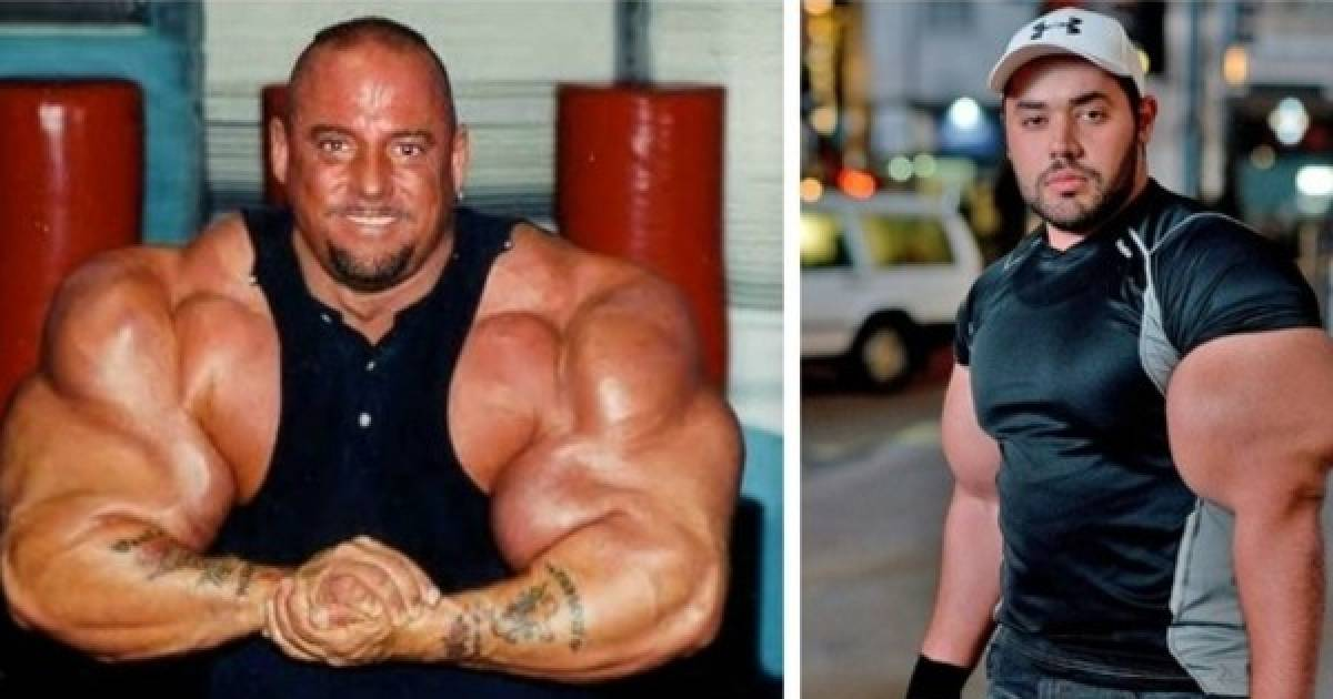 7 Crazy Looking Bodybuilders That Really Need To Lay Off The Roids And Injections!