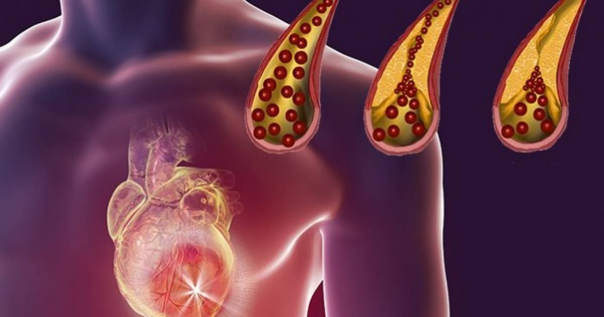 Foods That You Should Eat Daily To Unclog Arteries