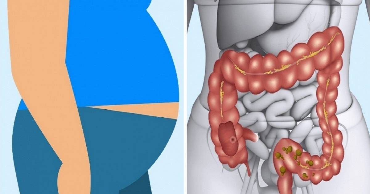 Sign And Symptoms Your Body Is Not Digesting Meat Properly