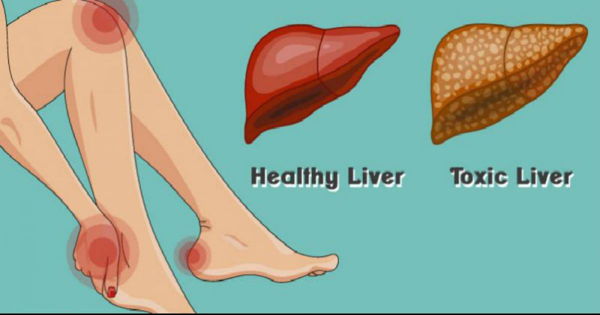 Signs Of A Toxic Liver And How To Deal With It