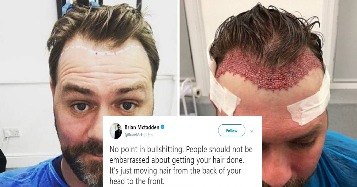 Brian McFadden Shares Gruesome Photos Of His Hair Transplant