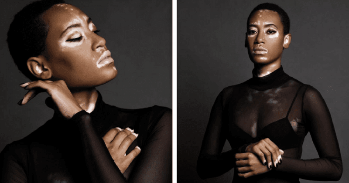 Covergirl Features A Model With Vitiligo In Their New Beauty Campaign Ad For The First Time Ever