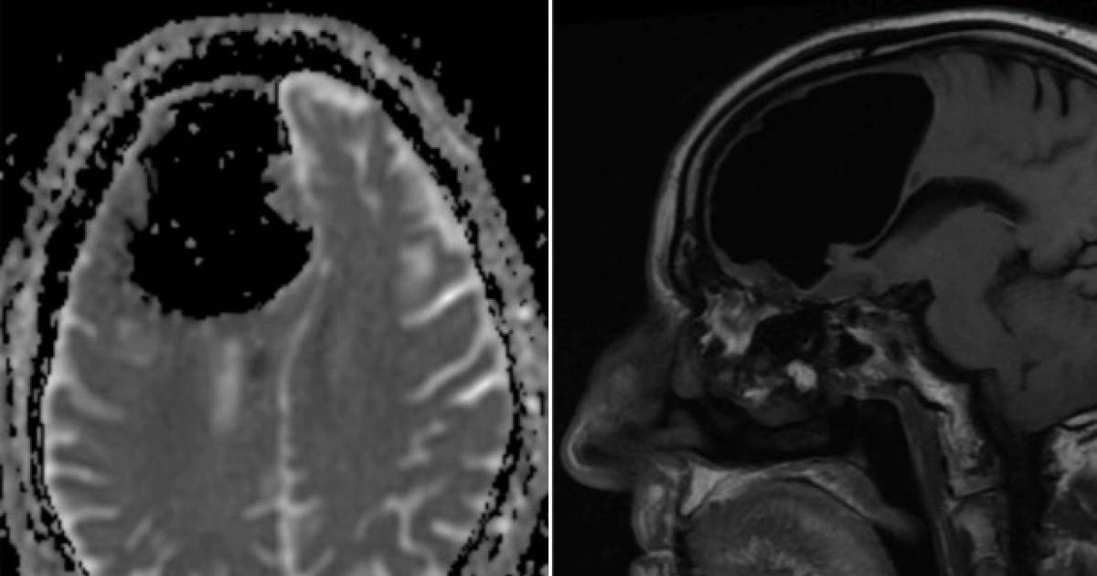 Doctors Shocked To Discover Man With Missing Part Of Brain's Skull Filled With Apple-Sized Air Bubble