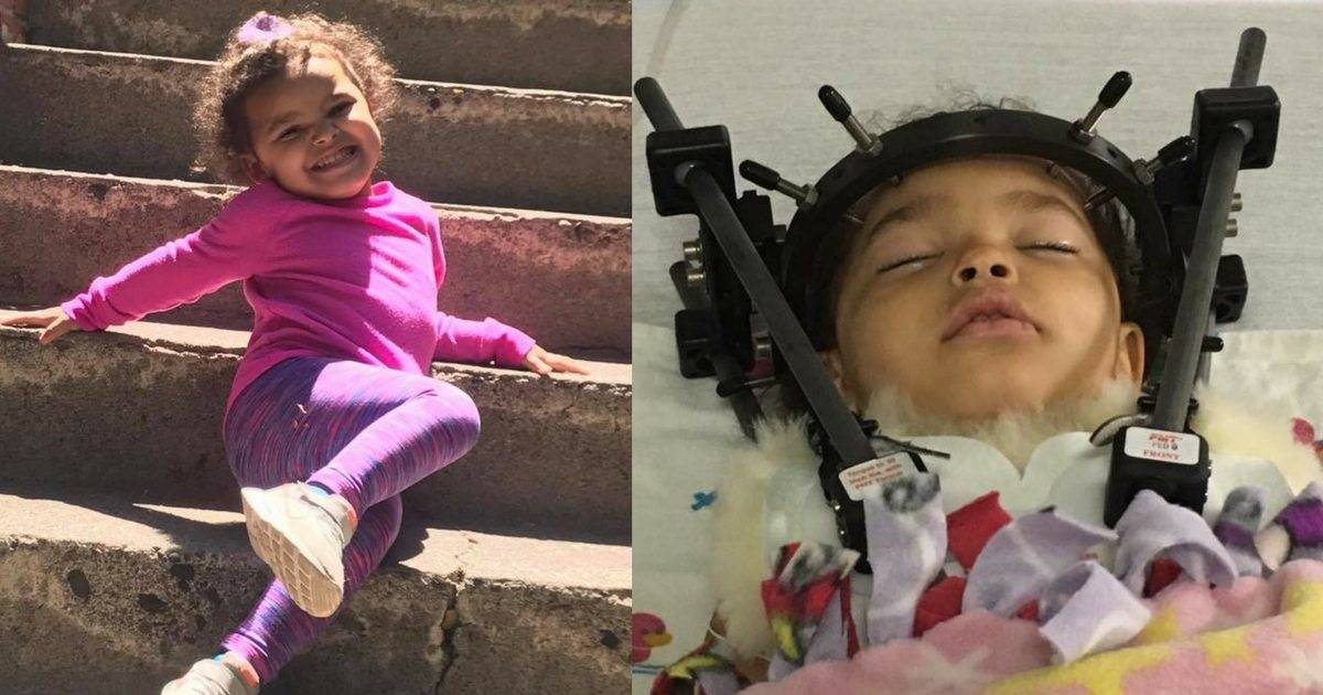 Grandmother Warns About The Dangers Of Forward Facing Car Seats After Granddaughter Is Left Partially Paralyzed In A Car Accident. Too Early