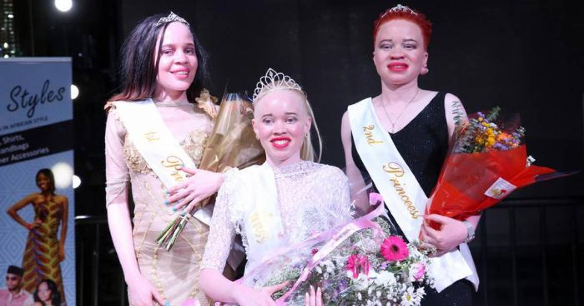 Zimbabwe Held First Ever Miss Albino Beauty Pageant To Fight The Stigma Surrounding It