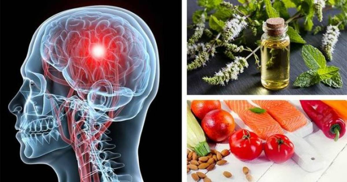 Vitamin B2 And Migraines: Here Is How Vitamin B2 Is Effective For The Treatment Of Migraine Headaches