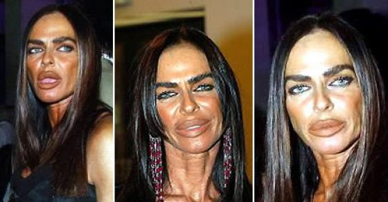 The Worst Plastic Surgery Disasters EVER!