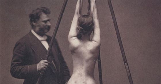 These 18 Vintage Medical Photos Are Both Creepy And Fascinating