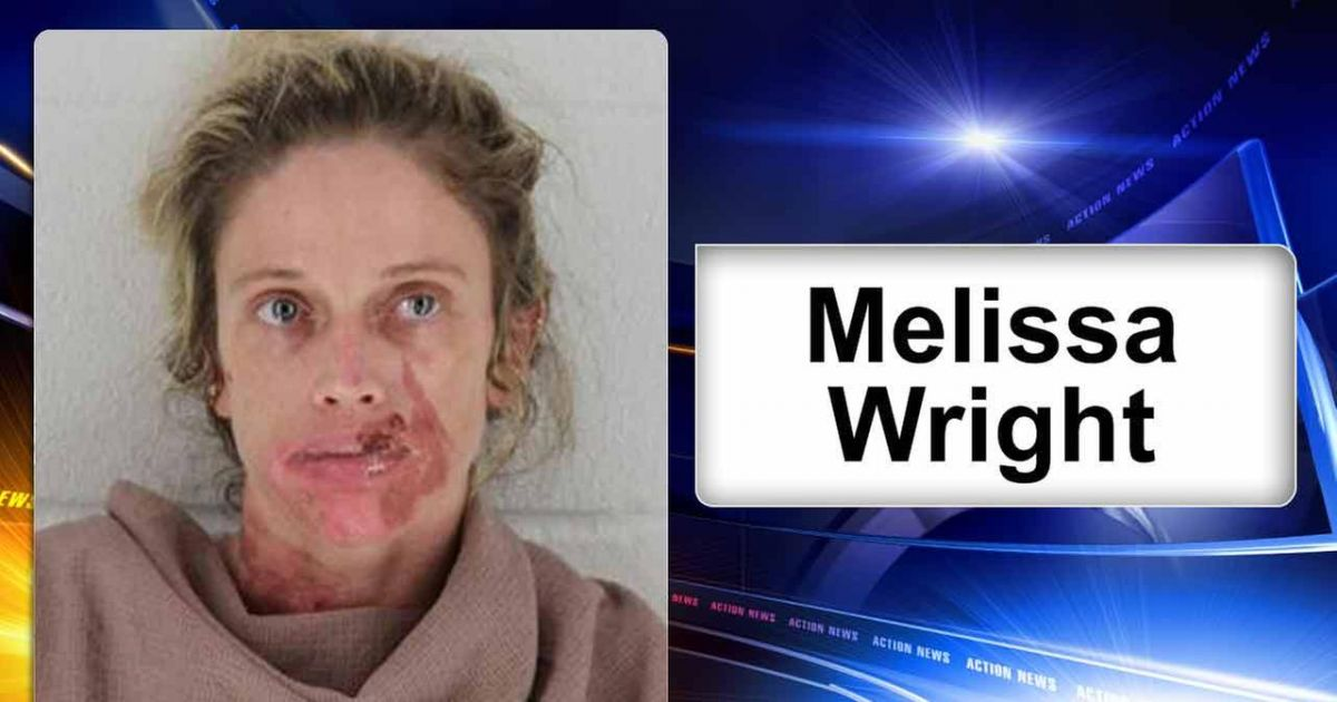 Woman Gets Instant Frostbite On Her Face After Attempting To Get High From Huffing Canned Air