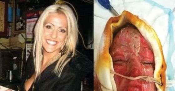 A Woman Was Burned By A Maniac, After Two Years She Removed The Mask Protecting Her Face