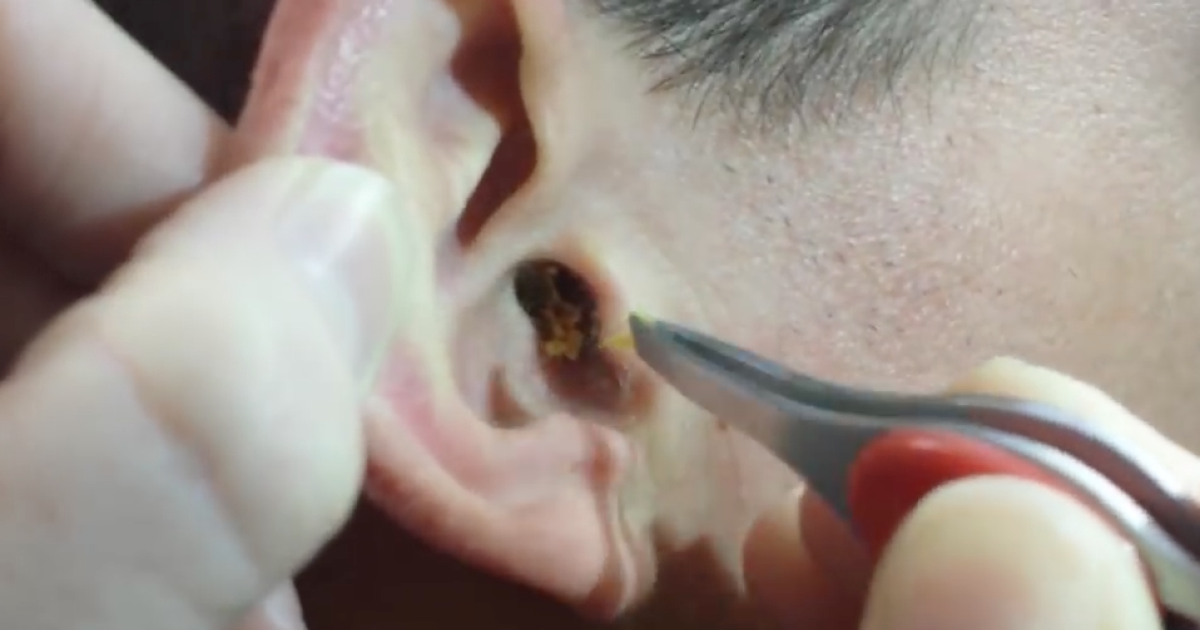 This Guy Had A Huge Lump Of Earwax Stuck In His Ear