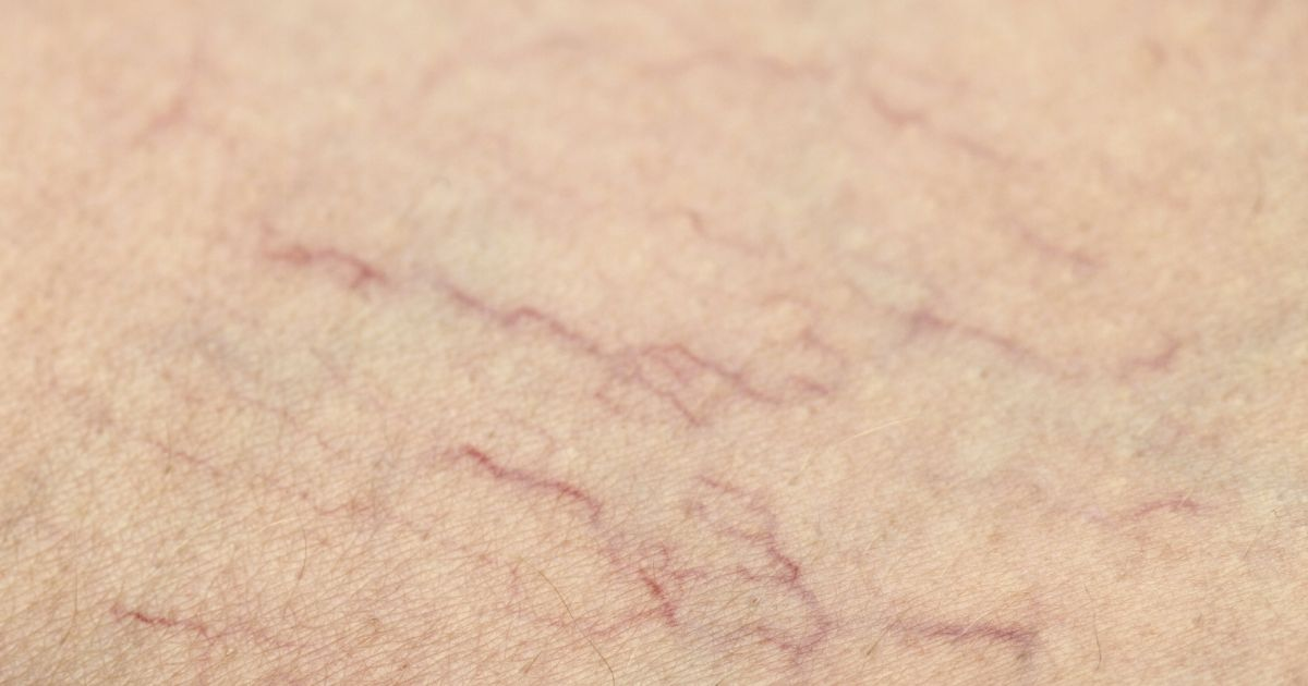 Everyone Has This Miracle Cure For Spider Veins At Home, But Not Many Know About It.