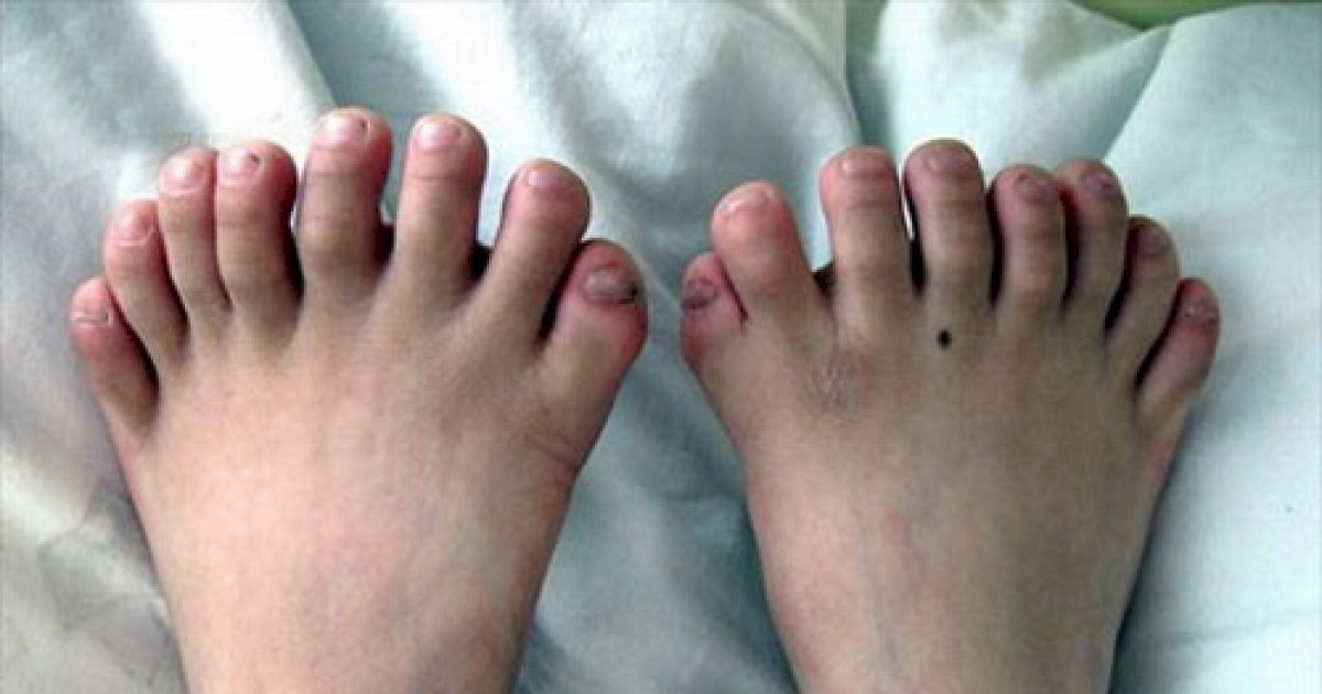 10 Of The World's Craziest Medical Conditions