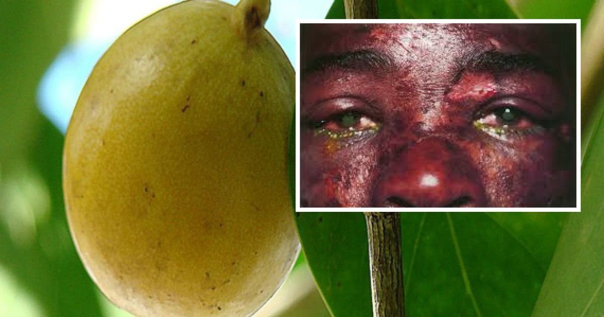 The 'Tree of Death' Causes Instant Blisters, Blindness And Even Death